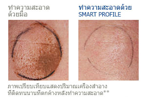 manual cleansing vs smart profile cleansing